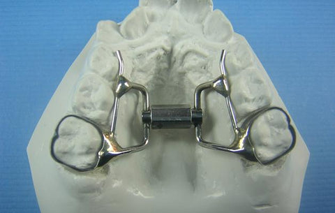 orthodontic super screw expander model
