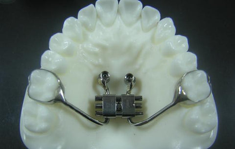 Temporary Anchorage Devices (TAD) Orthodontic Model #2