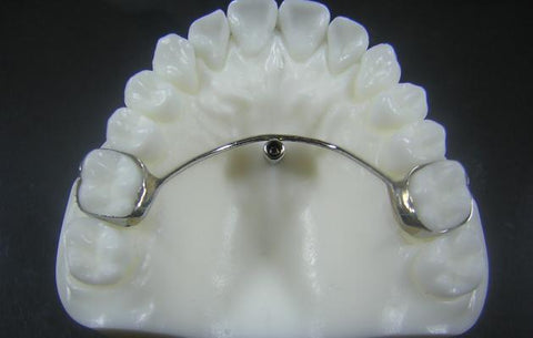 Temporary Anchorage Devices (TAD) Orthodontic Model #3