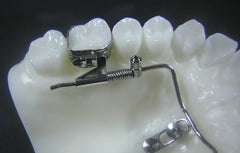 Temporary Anchorage Devices TAD Orthodontic Model #1