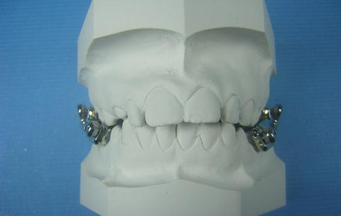 Telescoping Herbst Orthodontic Model