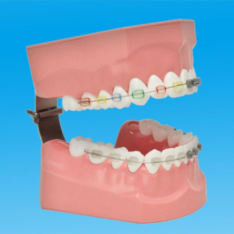 Orthodontic Model Adult Tooth Brushing & Braces Wire