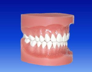 Orthodontic Bonding Model