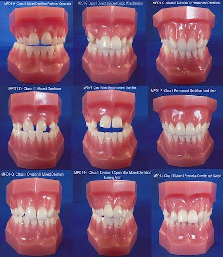 orthodontic malocclusion models set