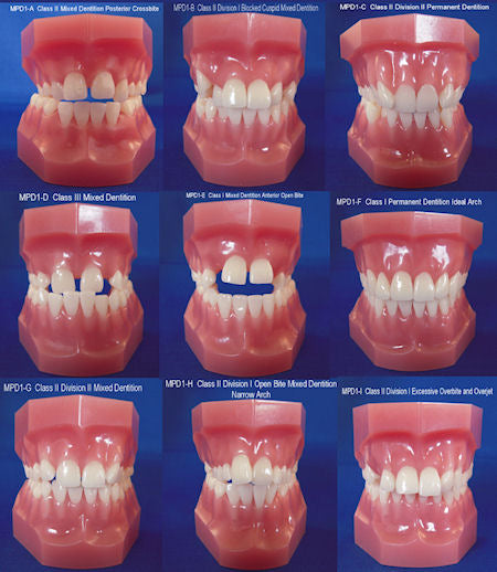 Orthodontic Malocclusion Kit Of 9
