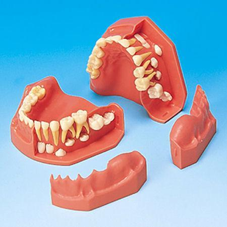 Orthodontic Eruption Models Ages 3~6,  5~9,  9~12 Y/Old 2 Individual or Kit of 6