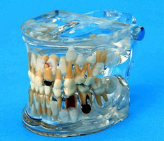 Orthodontic Models With Pathological Disease