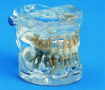 primery dentition orthodontic model