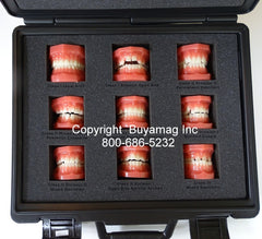 Orthodontic Malocclusion set Of 9