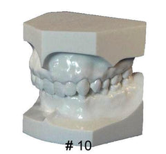 Orthodontic Malocclusion Set Of 10