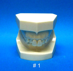 orthodontic malocclusion models