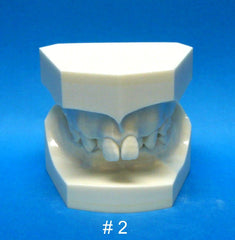 Orthodontic Malocclusion Kit Of 10