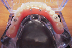 14 Tooth Over-Denture 4 Implants