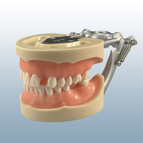 impression edentulous model
