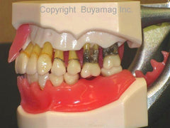 Periodontal Disease Model  Gum Bone Loss