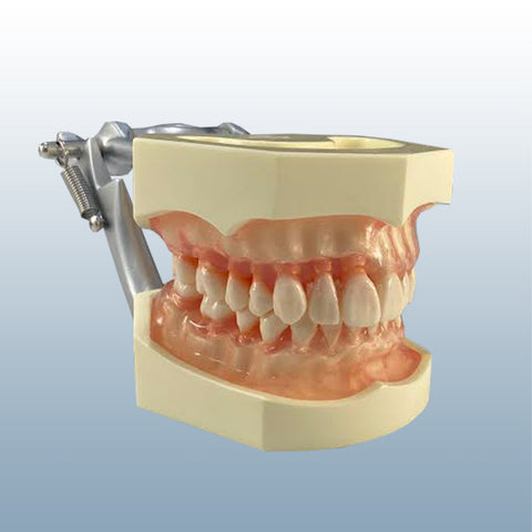 periodontal bone resorption model