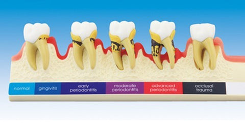 Periodontal Disease Demonstration Model 2x Enlarged Size