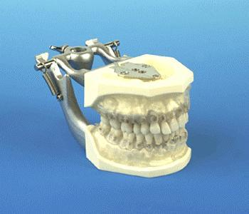 Periodontal Training Model