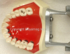 Periodontal Inflamed,  Recession, Abrasion