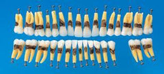 peridontal teeth replacement