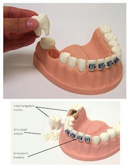Dental Periodontal Orthodontic Hygiene Involved Model  Flossing & Brushing
