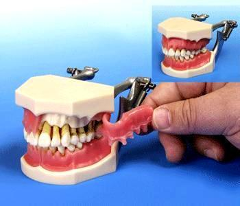 Periodontal Deluxe Model With Calculus Deposits Training 32 Teeth Model