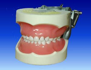 full primary dentition child teeth model