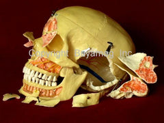 skull anatomical models