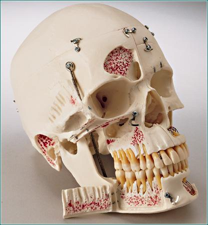 Dental Skull Model With Display Case Deluxe Academy