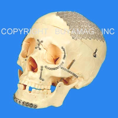 Skull Craniofacial Surgery Cranium Reconstruction Titanium Modular Implants  Devices  Simulator  Academy  Educational  Model