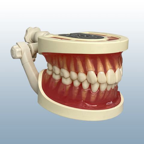 tooth extraction dental model