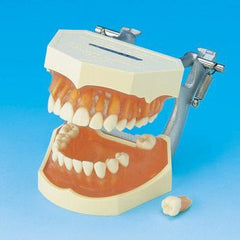 tooth extraction model