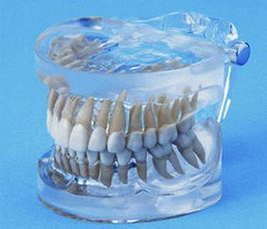 Dental Model 28 Anatomically Shaped Teeth