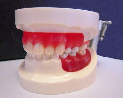 Dental Typodont Model Epoxy Resin Wax