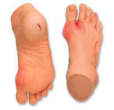 foot diabetic wound model