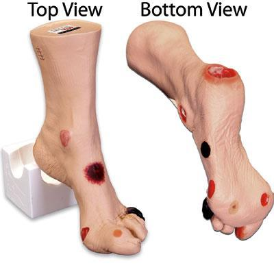 Foot Wound Model Set Of 1
