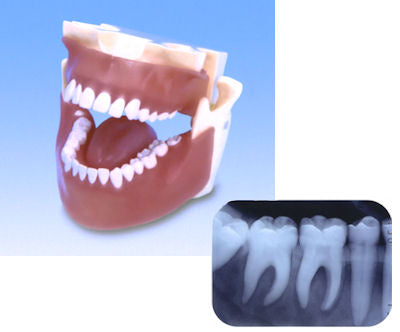 Spare Replacement Teeth X- Ray Typodont Model
