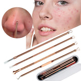 Rose Gold Blackhead Removal Tools (4 Pack)