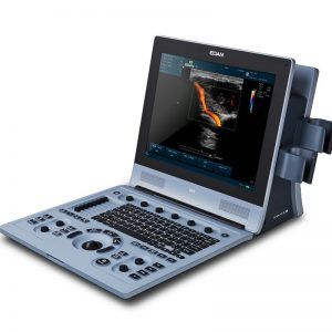 U60 Diagnostic Ultrasound System