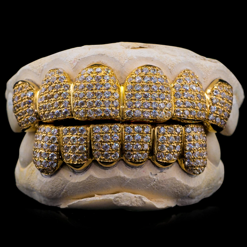 10K Gold SI Diamond Grillz (Straight Set)