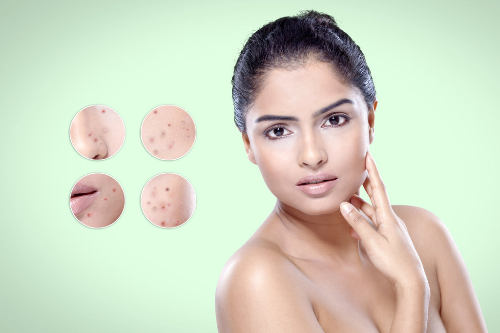 7 Effective Ways To Get Rid Of Acne Scars