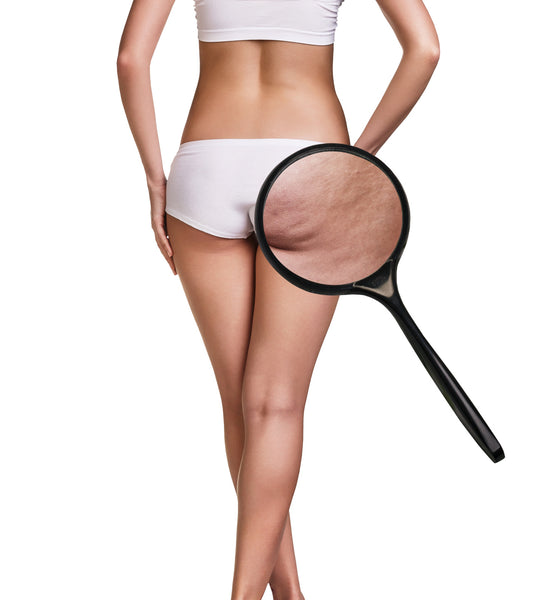 woman with cellulite