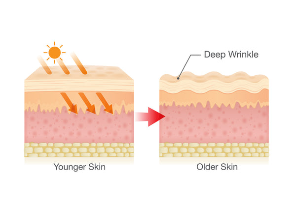 premature aging on the skin