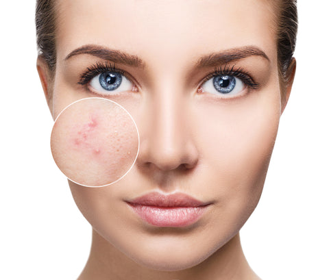 Image result for face problems