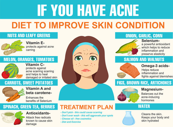 infographic - foods that prevent acne