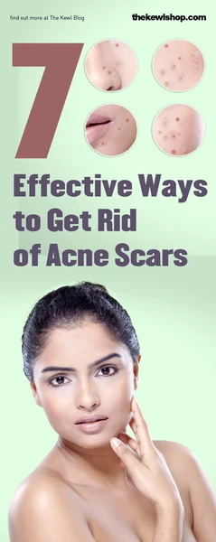 Way to get rid of acne scars - Pinterest banner