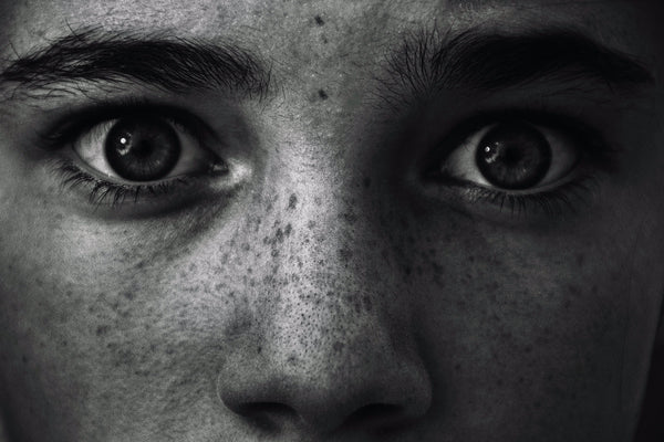 Close up of girl with freckled but cleansed face