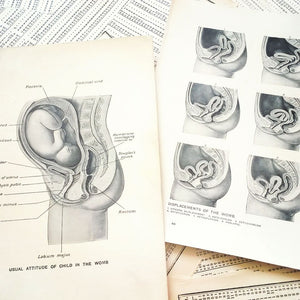 Vintage Medical Pages - The Womb