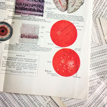Load image into Gallery viewer, Vintage Medical Pages - Eye Structures
