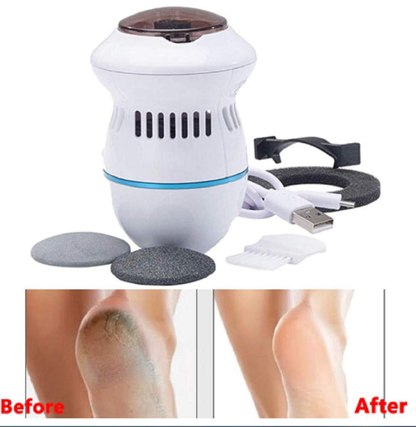 Un-Tech Foot File and Callus Remover Scrubber Pedicure Tool with Built-In Vacuum